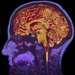 Revisiting Brain Imaging and Schizophrenia